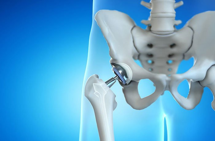Anterior Approach Hip Replacement